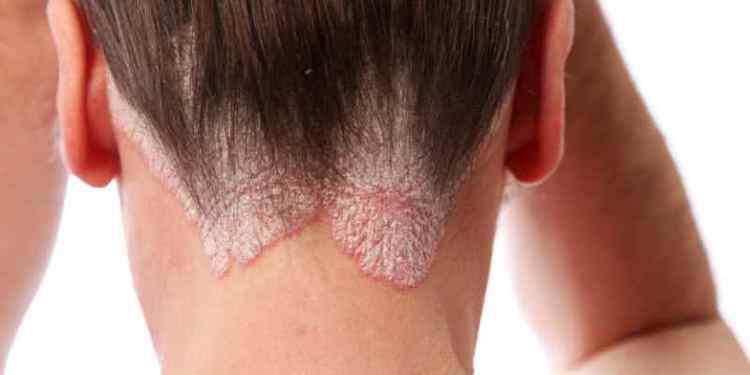 meilleur shampoing pour psoriasis